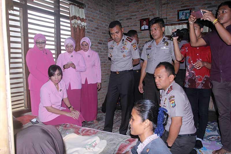 Polres Metro Bantu Laela dan Abud Rahayu Bocah Penderita Hydrocephalus 3