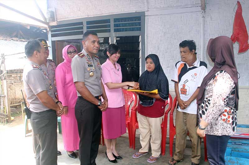Polres Metro Bantu Laela dan Abud Rahayu Bocah Penderita Hydrocephalus